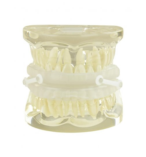 Oral appliance against snoring and nocturnal breathing stops